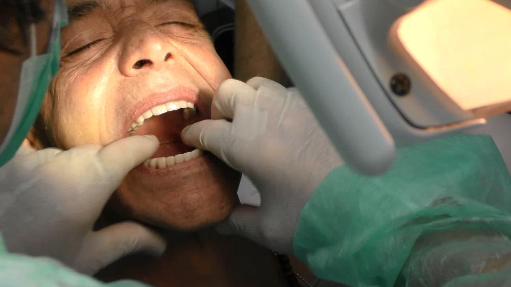 implantologia a carico immediato con poco osso