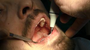 Implantologia a carico immediato rimedico contro parodontite